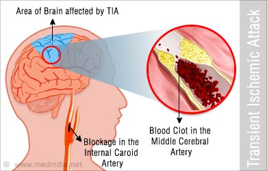 transient ischemic attack After experiencing a transient ischemic attack, your doctor will recommend treatment based on the cause treatment is often to prevent future events.