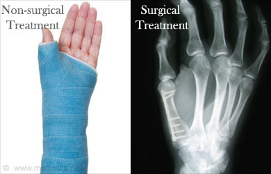 Simply excellent treatment for broken thumb bones apologise, but