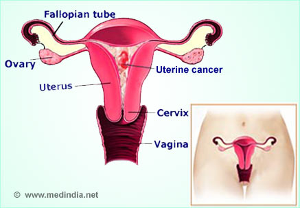 Menopause and endrometrial cells on cervix
