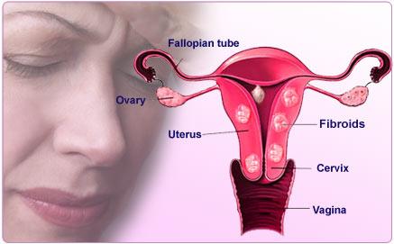 Uterine Fibroids | Fibroids in Uterus – Causes , Types, Symptoms ...