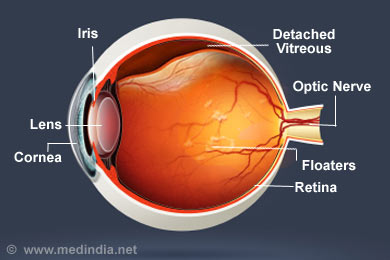 Facts About Vitreous Detachment  National Eye Institute