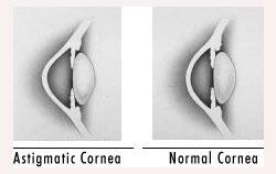astigmatism - causes symptoms diagnosis treatment faqs, Cephalic Vein
