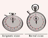 symptoms of astigmatism, Cephalic Vein