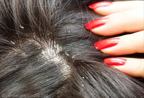 Foods to Get Rid of Dandruff
