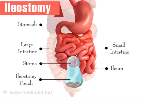 Foods To Eat With Ileostomy