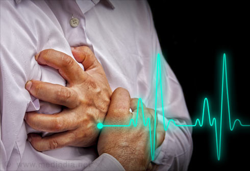 Hypertension - Foods to be Avoided