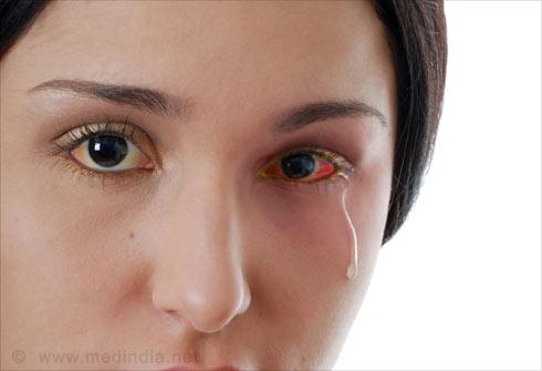Cat Asthma Eye