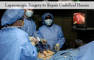 Umbilical Hernia - Treatment, Tests, Surgery, Complications