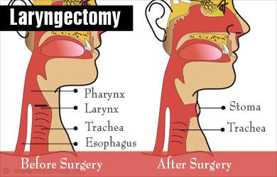 Laryngectomy - Procedure, Risks and Post Laryngectomy Therapy