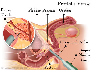 Radical prostatectomy types tests procedure complications biopsy of the seminal vesicles maybe required if there is infiltration of the gland ccuart Image collections