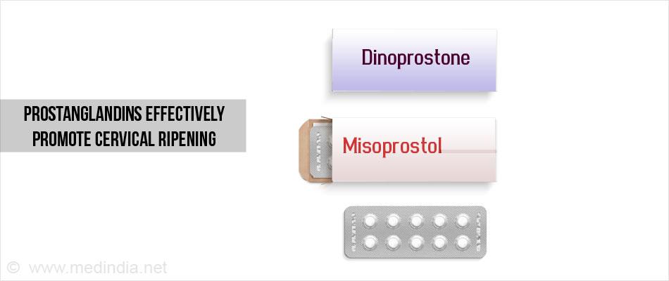 Cervical Ripening Methods Benefits Risks